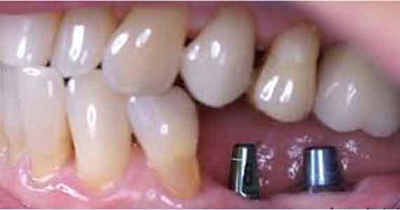 implant là gì, cấy ghép implant là gì