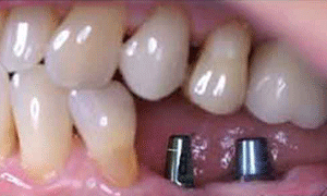bảng giá cấy ghép implant bao nhiêu ở tp hồ chí minh
