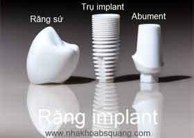 các thành phần răng implant