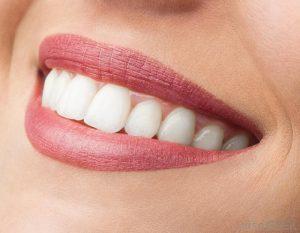 cấy ghép implant có đau hơn nhổ răng