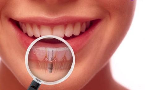 cayys ghép implant có đau hoen nhổ răng