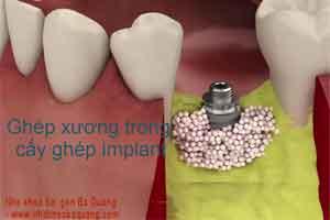 ghép xương nhân tạo trong cấy ghép implant