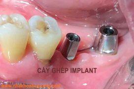 trồng răng nằng phương pháp cấy ghép implant giá bao nhiêu tièn