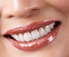 bảng giá răng sứ và các dịch vụ đi kèm trồng răng