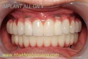 bảng gia implant-all on four-4