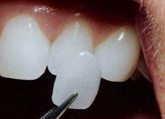Bọc răng sứ là gì, giá bao nhiêu, có thực sự tốt?