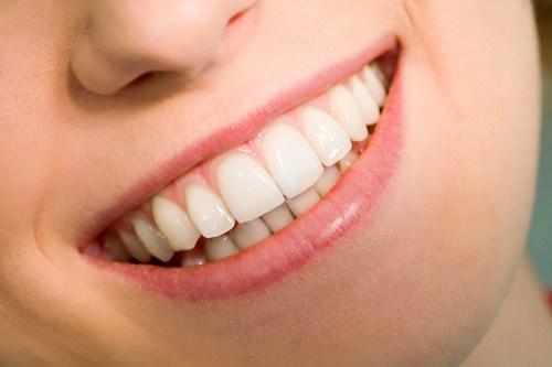Bọc răng sứ thẩm mỹ có đau không, khi nào thì hết?-1