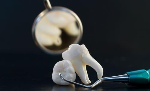 Dành cho những ai đang có ý định chữa tủy răng!