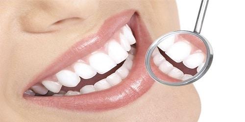 chụp răng sứ trồng ra chiếc răng hoàn hảo