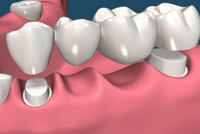 có nên lấy tủy răng trước khi bọc răng sứ