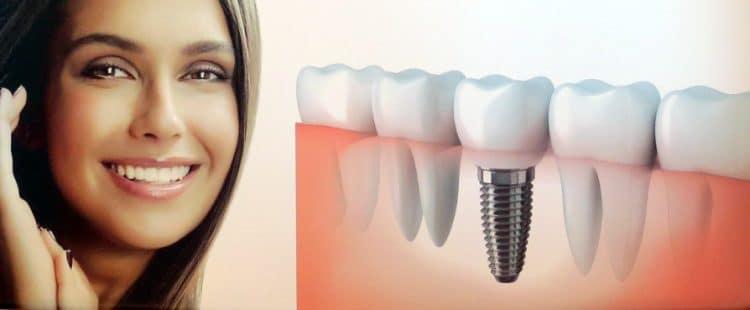 có nên trồng implant giá rẻ
