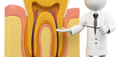Diệt tủy răng bằng thuốc mất khoảng bao lâu thì có thể hút tủy ra ngoài?