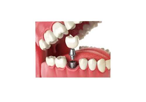 giá trồng răng implant -2