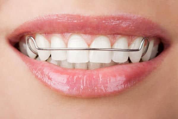 khí cụ duy trì sau niềng răng - bảng giá