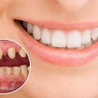 Làm răng sứ bị ê – đau khi nhai thức ăn là do đâu?