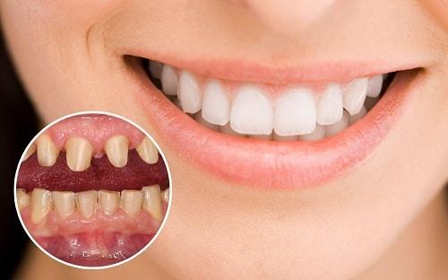 Làm răng sứ bị đau khi nhai thức ăn là do đâu?
