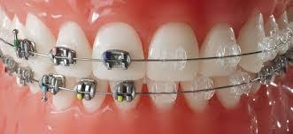 Niềng răng mắt cài sứ - giá niềng răng