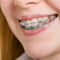 Những trường hợp nhất định không được niềng răng sứ