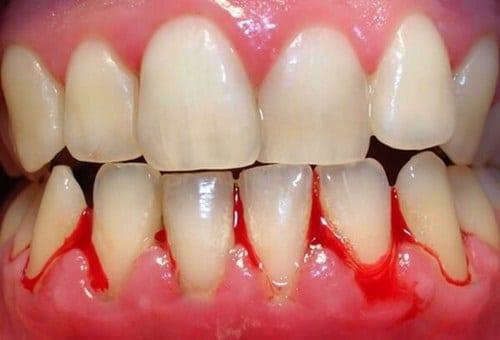 niềng răng sứ -Những trường hợp nhất định không được niềng răng