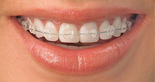 Niềng răng sứ giá bao nhiêu là chuẩn nhất?