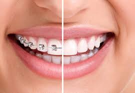 Niềng răng tại nha khoa sài gòn bs quang tphcm-bảng giá