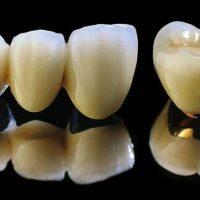 Răng sứ kim loại là gì có nên bọc răng sứ kim loại không?
