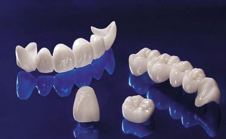 Răng sứ và những vấn đề cần biết về răng sứ?