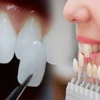 Răng sứ Veneer và những ưu nhược điểm cần biết trước khi làm