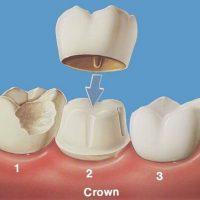 Răng bọc sứ bị mẻ thì nên đi trám thay răng sứ mới?