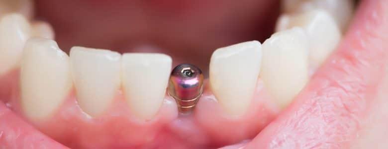 trong rang implant gia re