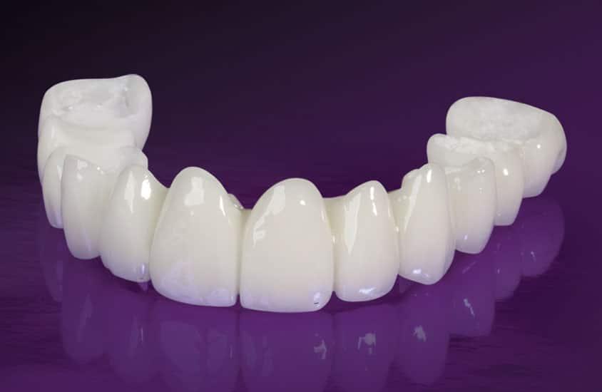 Trồng răng sứ giá bao nhiêu để có được hàm răng đẹp trắng sáng