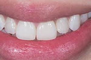 trong răng sứ trên implant - bảng giá