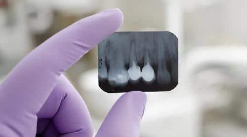 Đặt thuốc diệt tủy răng có đau không?