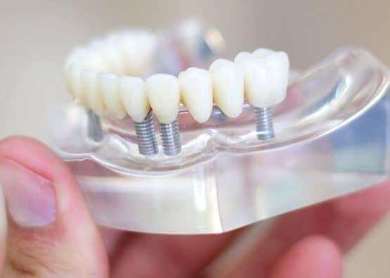 Giá bọc răng sứ cho răng cửa hiện nay bao nhiêu?