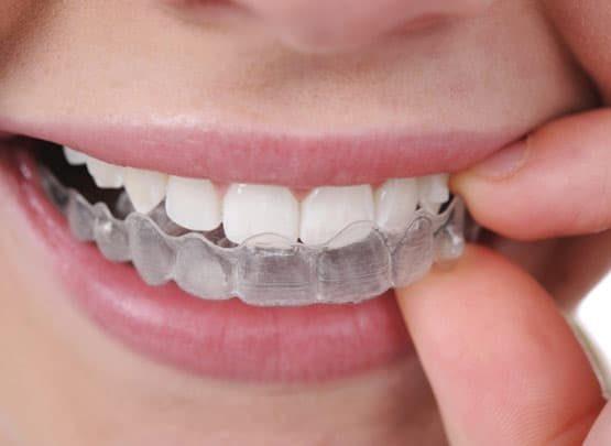 Giá tẩy trắng răng hiện nay bao nhiêu là chuẩn nhất?