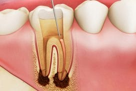 Lấy tủy răng bao nhiêu lần thì không cần lấy lại nữa?