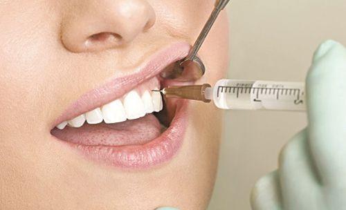 """Quy trình chữa tủy răng """"bái bai""""sâu răng và cơn đau răng hành hạ-2"""