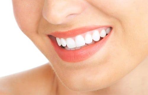 Răng sứ thẩm mỹ và sức hấp dẫn khiến ai nhìn cũng mê