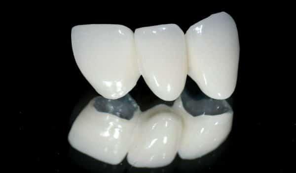 3 loại răng sứ titan được nhiều người dùng chọn nhất hiện nay