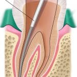 Triệu Chứng Sau Khi Lấy Tủy Răng Như Thế Nào?