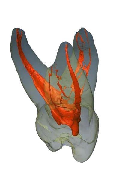 triệu chứng sau khi lấy tủy răng