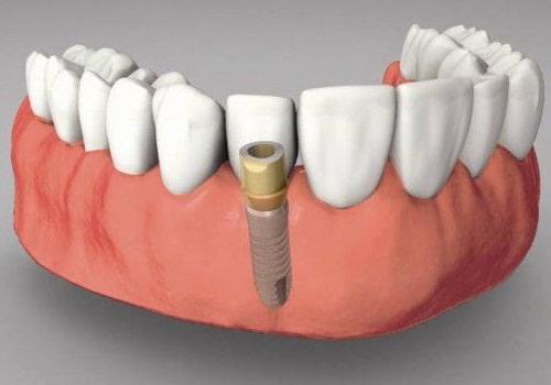 Những điều cần lưu ý khi có ý định trồng răng sứ implant