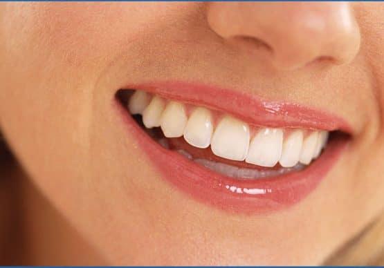 Trồng răng vĩnh viễn bằng phương pháp cấy ghép implant