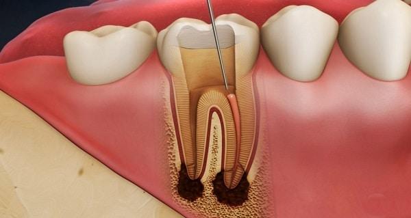 Tủy răng là gì và những vấn đề liên quan cần biết