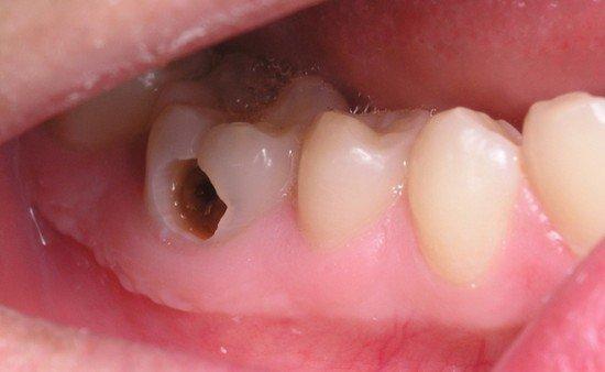 Bị sâu răng làm sao để chữa dứt điểm hoàn toàn?