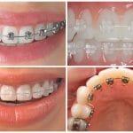 Các loại niềng răng hiện nay, nên chọn loại niềng răng nào?