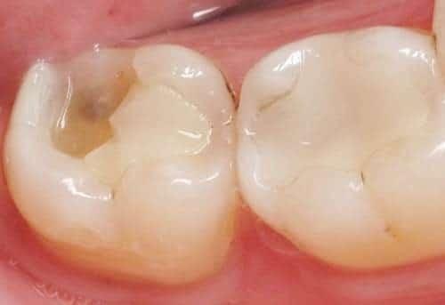 Cách trám răng không bị đau hiện nay tại Nha Khoa Sài Gòn bác sĩ Quang