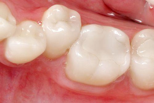 """Chữa sâu răng và những vấn đề cần """"note"""" lại trước khi thực hiện"""