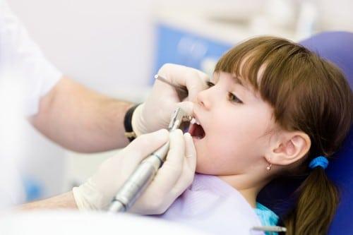 Giá niềng răng rẻ nhất 2019 tphcm là bao nhiêu?