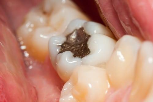 Giá trám răng của tôi hiện nay bao nhiêu thưa bác sĩ??